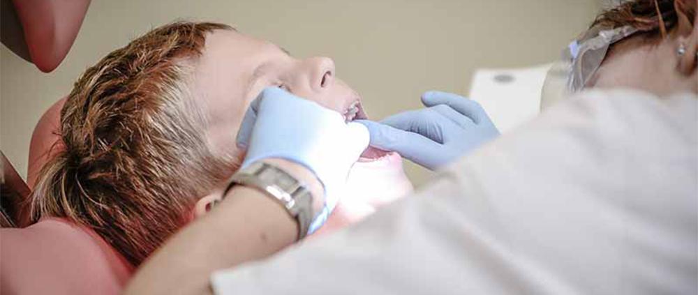 Carie nei denti da latte: fattori di rischio per la malocclusione