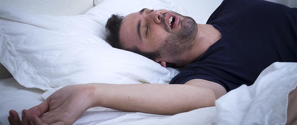 Osas apnee notturne e ortodonzia