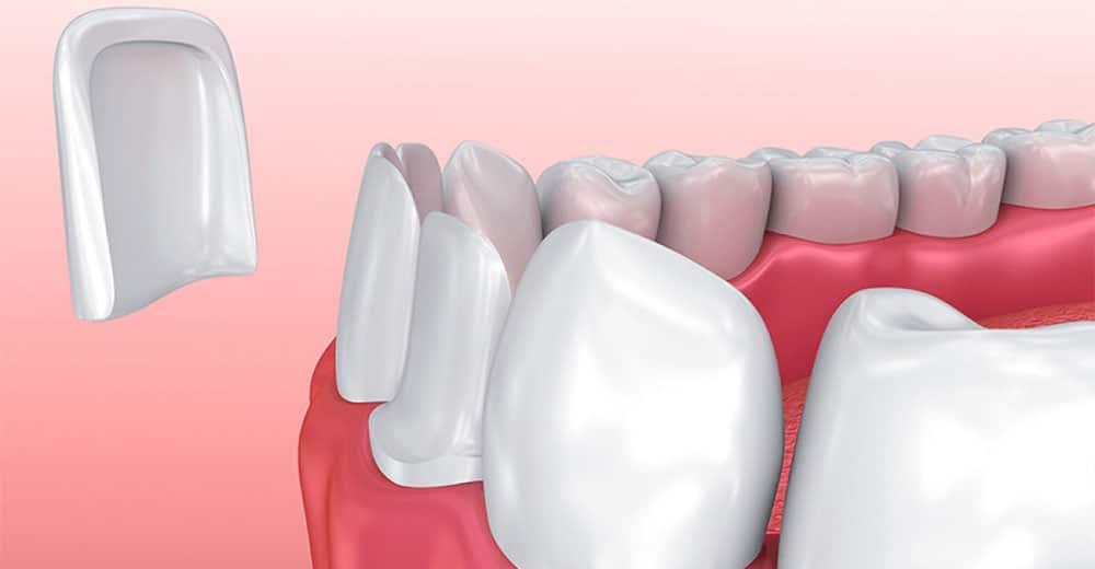 Odontoiatria estetica faccette dentali