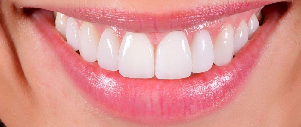 Odontoiatria estetica le faccette dentali